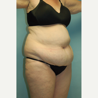 "58 year old woman, 5'6"", 188 lbs. four months after lipoabdominoplasty before 3771642"