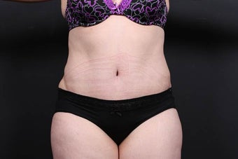 40 year old woman underwent full abdominoplasty with liposuction after 987584