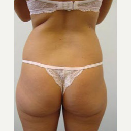 35-44 year old woman treated with Liposuction before 3374896