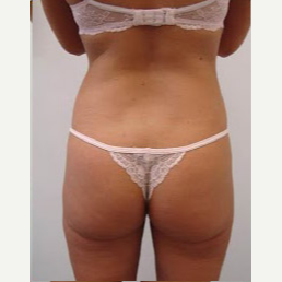 35-44 year old woman treated with Liposuction after 3374896