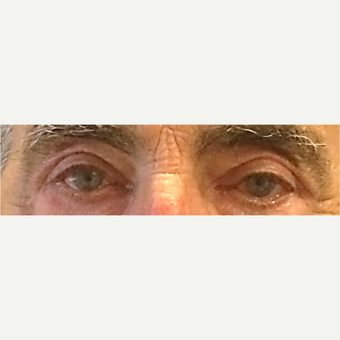 87 Year Old Man: Eyelid Surgery after 3583058