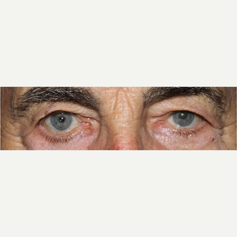 87 Year Old Man: Eyelid Surgery before 3583058