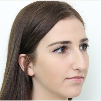 18-24 year old woman treated with Rhinoplasty before 3366744