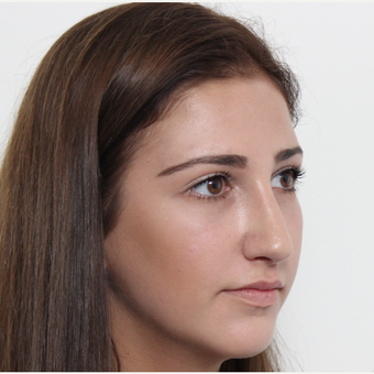 18-24 year old woman treated with Rhinoplasty after 3366744