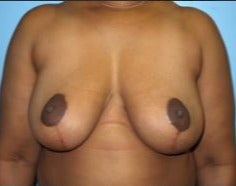 45-54 year old woman treated with Breast Reduction after 3482710