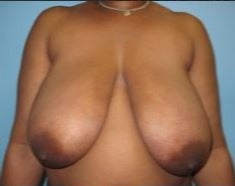 45-54 year old woman treated with Breast Reduction before 3482710