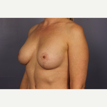 35-44 year old woman treated with Breast Lift with Implants after 3817113