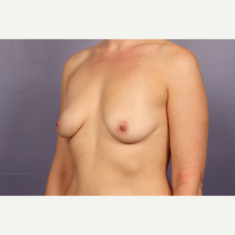 35-44 year old woman treated with Breast Lift with Implants before 3817113