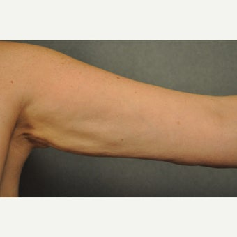 45-54 year old woman treated with Liposuction of the Arms 1564444