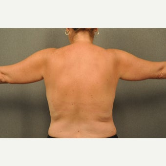 45-54 year old woman treated with Liposuction of the Arms before 1564444