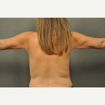 45-54 year old woman treated with Liposuction of the Arms after 1564444