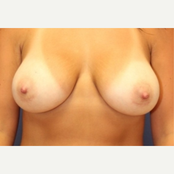 34 year old woman with a Breast Augmentation after 3076148