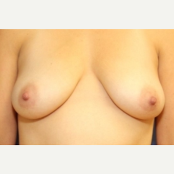 34 year old woman with a Breast Augmentation before 3076148