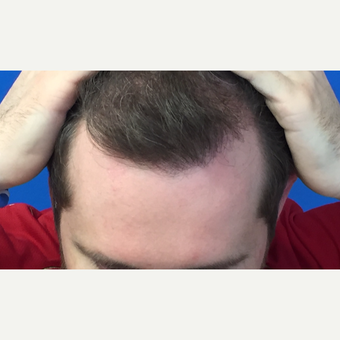 25-34 year old man treated with Hair Transplant after 3102674