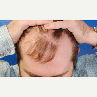 25-34 year old man treated with Hair Transplant before 3102674