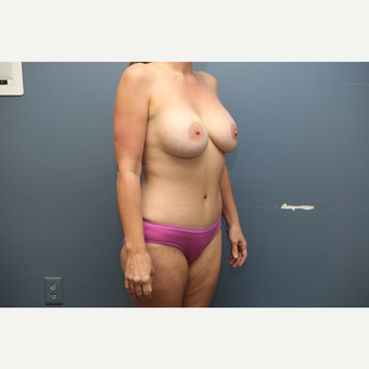 35-44 year old woman treated with Mommy Makeover after 3658873