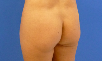 37 y.o. female – Liposuction of abdomen, flanks, and back with fat transfer to buttocks  – 1250cc pe before 2483500