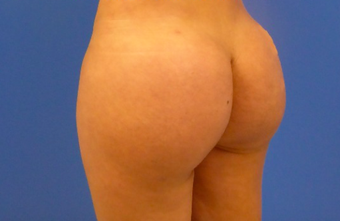 37 y.o. female – Liposuction of abdomen, flanks, and back with fat transfer to buttocks  – 1250cc pe after 2483500