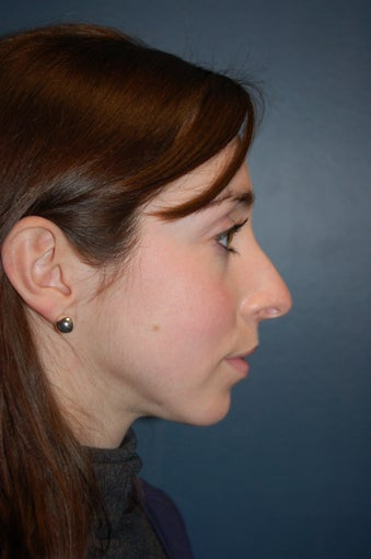 Nose Surgery before 928639