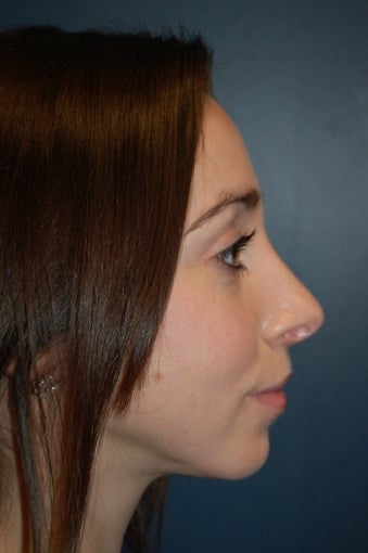 Nose Surgery after 928639