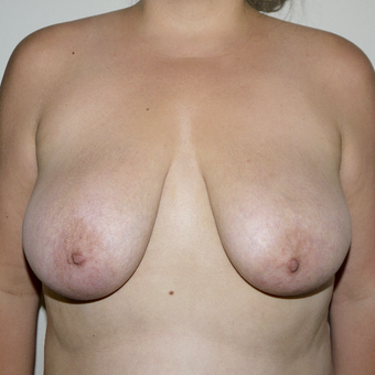 34 year old complaining of breasts too large, uncomfortable, and saggy. before 3373649
