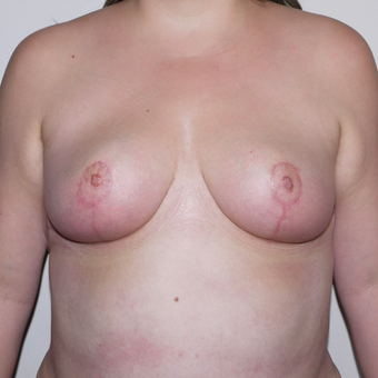 34 year old complaining of breasts too large, uncomfortable, and saggy. after 3373649