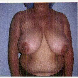 35-44 year old woman treated with Breast Reduction before 3032901