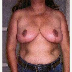 35-44 year old woman treated with Breast Reduction after 3032901