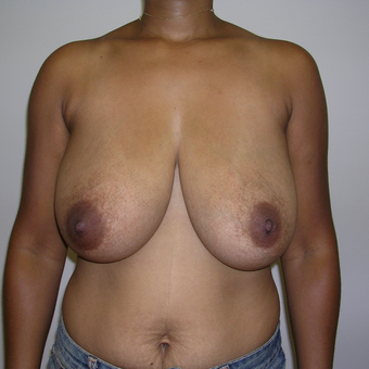 25-34 year old woman treated with Breast Reduction before 3737567