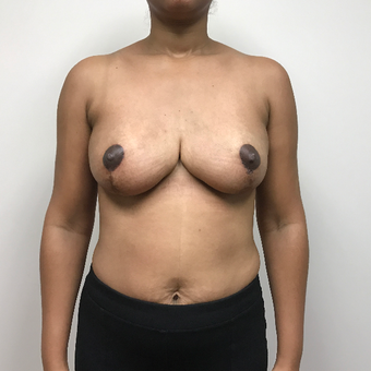 25-34 year old woman treated with Breast Reduction after 3737567