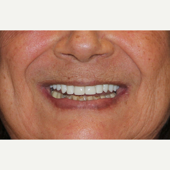 All-on-4 Dental Implants after 2378693