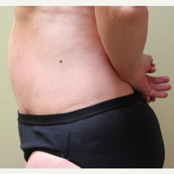 45-54 year old woman treated with Tummy Tuck after 2573321