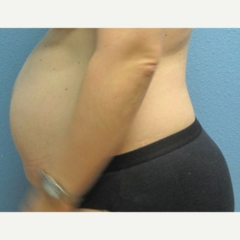 45-54 year old woman treated with Tummy Tuck before 2573321