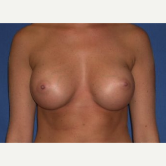 25-34 year old woman treated with Breast Augmentation after 3220025