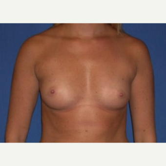 25-34 year old woman treated with Breast Augmentation before 3220025
