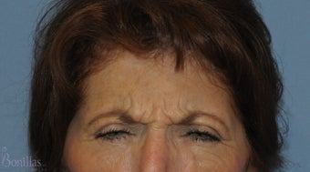 62 y/o female desired a refreshed look.