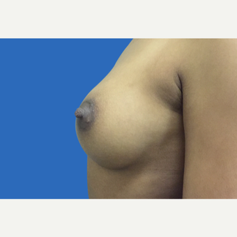 25-34 year old woman treated with Breast Augmentation after 3495117