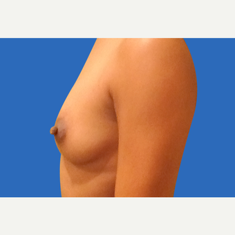 25-34 year old woman treated with Breast Augmentation before 3495117