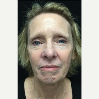 65-74 year old woman treated with Eyelid Surgery before 3528756