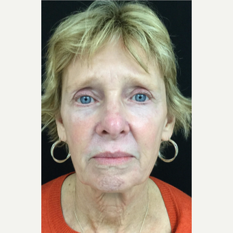 65-74 year old woman treated with Eyelid Surgery after 3528756