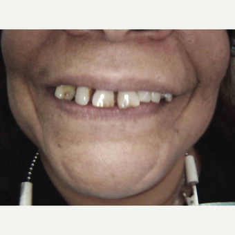 55-64 year old woman treated with Smile Makeover before 3659833