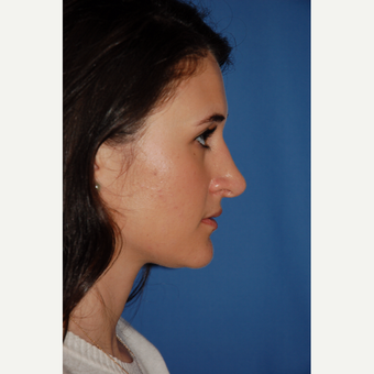 18-24 year old woman treated with Rhinoplasty before 3610204