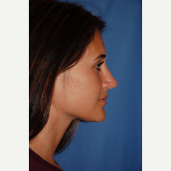 18-24 year old woman treated with Rhinoplasty after 3610204