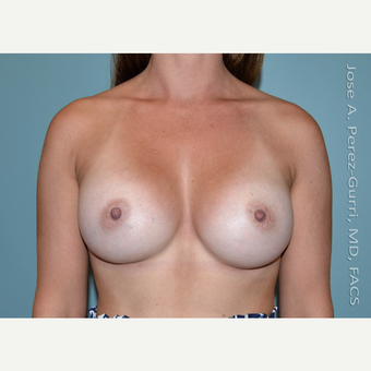 25-34 year old woman treated with Breast Augmentation after 2994654