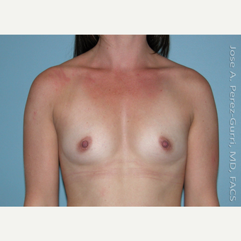25-34 year old woman treated with Breast Augmentation before 2994654