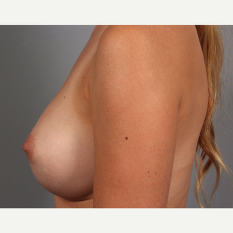 18-24 year old woman treated with Endo-Axillary Breast Augmentation after 3494300