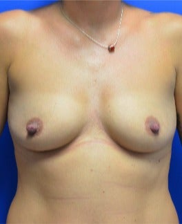 25-34 year old woman treated with Breast Augmentation before 2975730
