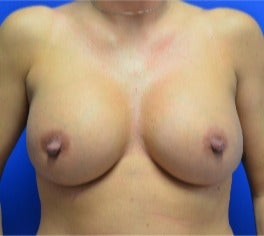 25-34 year old woman treated with Breast Augmentation after 2975730