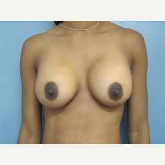 25-34 year old woman treated with Breast Augmentation after 2834719