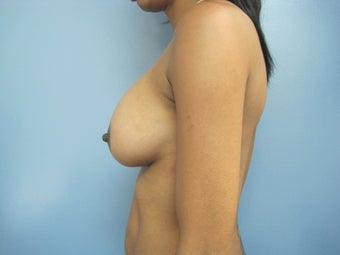 25-34 year old woman treated with Breast Augmentation 2834719